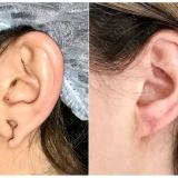 Что нужно знать о хирургии уха (отопластике)
